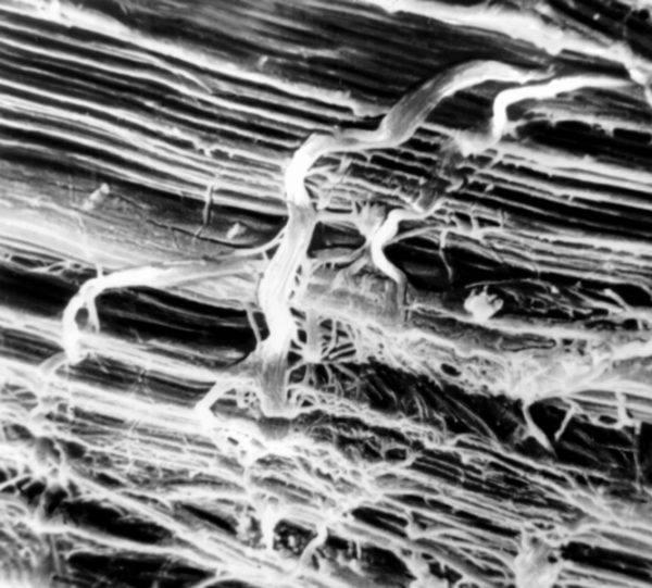 Микроскопия сухожилия